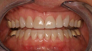 After porcelain veneers by Dr. Martin
