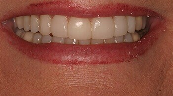 After teeth whitening procedure