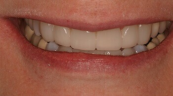 After the use of porcelain veneers