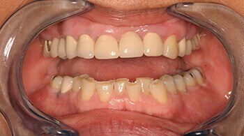 Before teeth whitening treatment