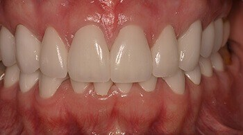 Now correctly aligned teeth