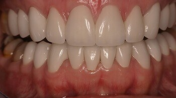 Teeth after cosmetic treatment