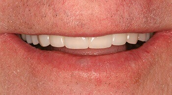 After tooth restoration