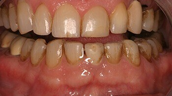Before tooth restoration