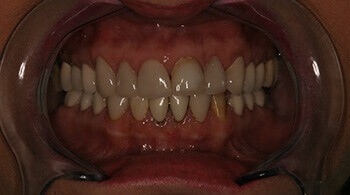Patient teeth before cosmetic treatment