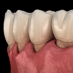computer model of plaque being cleared from teeth revealing gum tissue recession