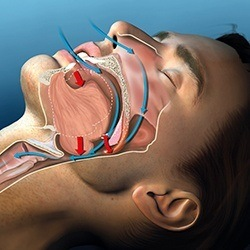 image of upper airway obstruction before sleep apnea therapy
